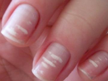 белые полосы на ногтях приметы