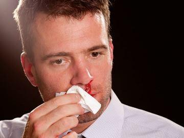 идет кровь из носа