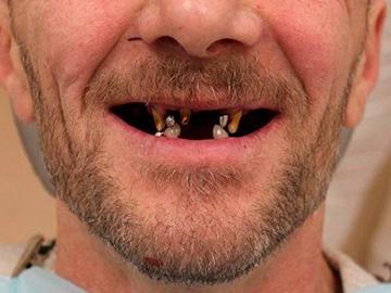 гнилые зубы во рту
